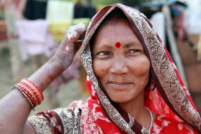Nepalese vrouw met melaatsheid